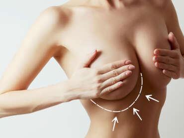 Implantes mamarios: recomendaciones